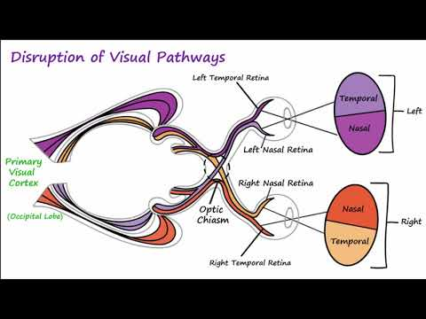 Visual Neural Pathways and Visual Field Defects