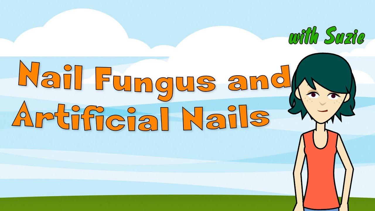 Nail Fungus and Artificial Nails - YouTube
