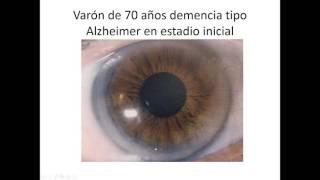 Globo azul de pendientes ocular