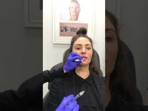 Lip Fillers Perth | Lip Augmentation Perth - Absolute Cosmetic