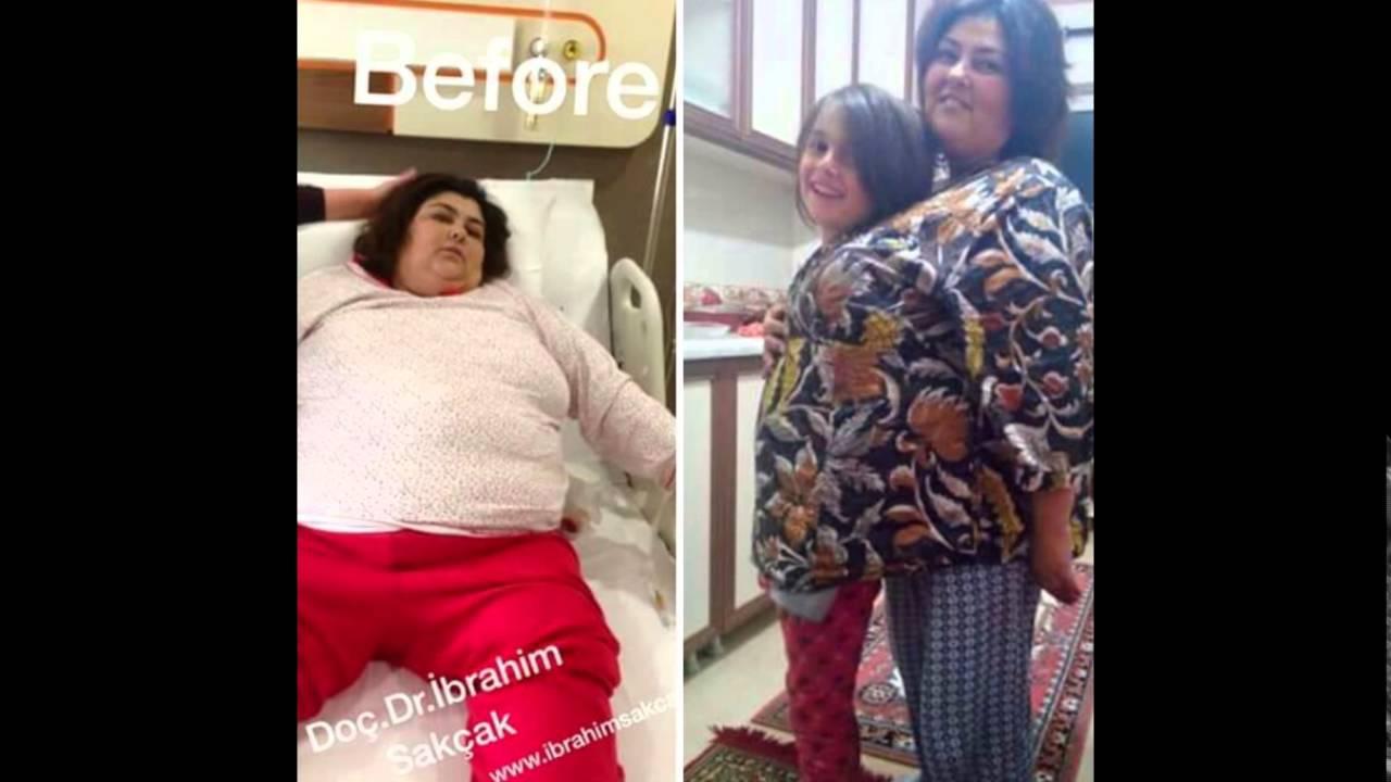Morbid Obezite ve Beslenme