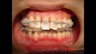 歯周病予防のための歯周矯正by福岡天神矯正歯科ティース thumbnail