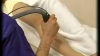Uklanjanje dlaka Neodimium YAG laserom