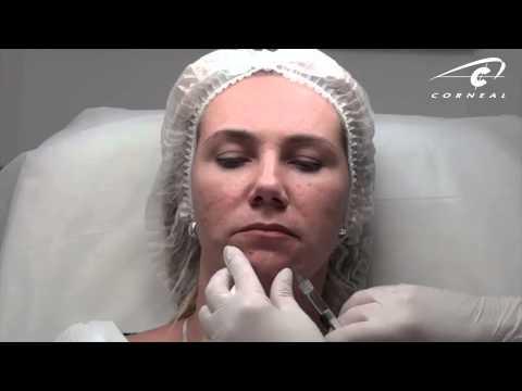Анестезия при кесаревом -