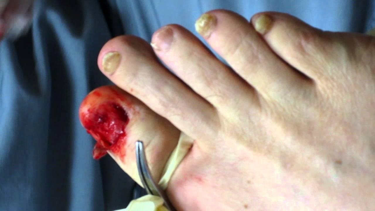total nail avulsion timonium foot