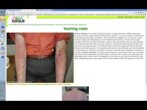 2012 11 28 20 07 Undergraduate Dermatology Lecture 14 Treatments Topical Systemic