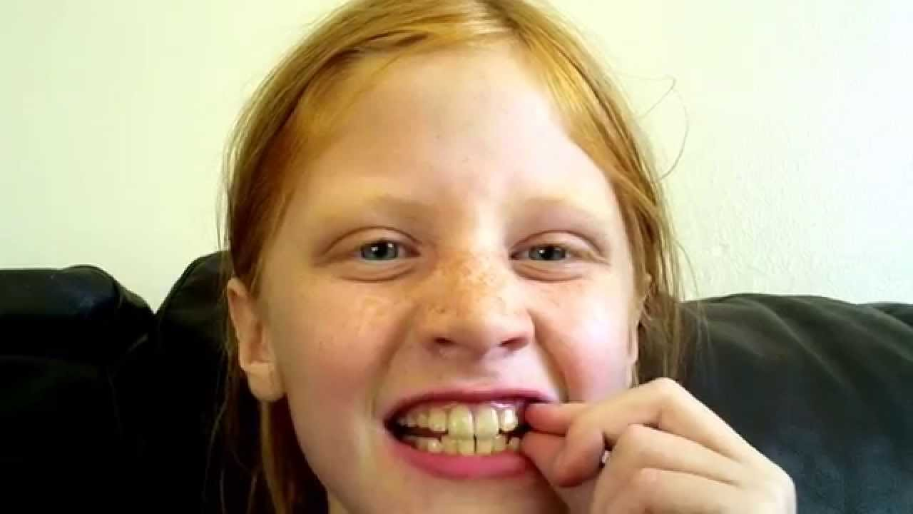 what teeth should a 10 year old lose youtube