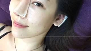 Karen隆鼻術後第4天-拔引流管、看中醫拿中藥