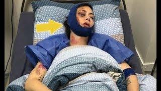 Жестокое избиение: актриса Самбурская показала свое изуродованное лицо