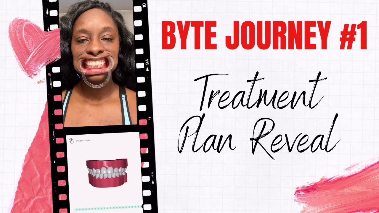 Byte Journey #1: Treatment Plan Reveal