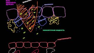 видео Воспаление. Стадии воспаления и их симптомы