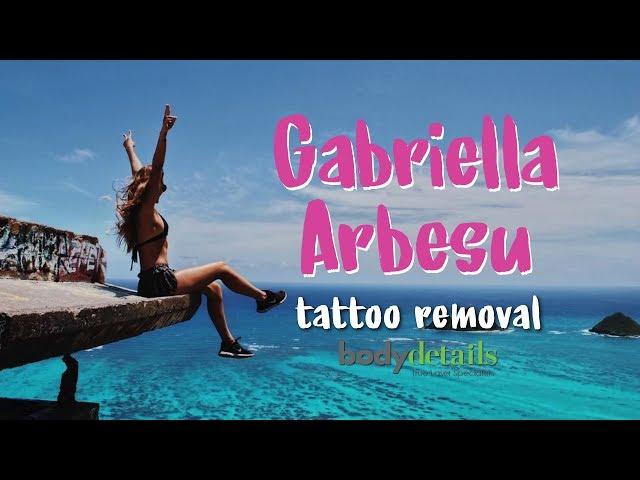 Laser Tattoo Removal Progress | Gabriella Arbesu | Body Details
