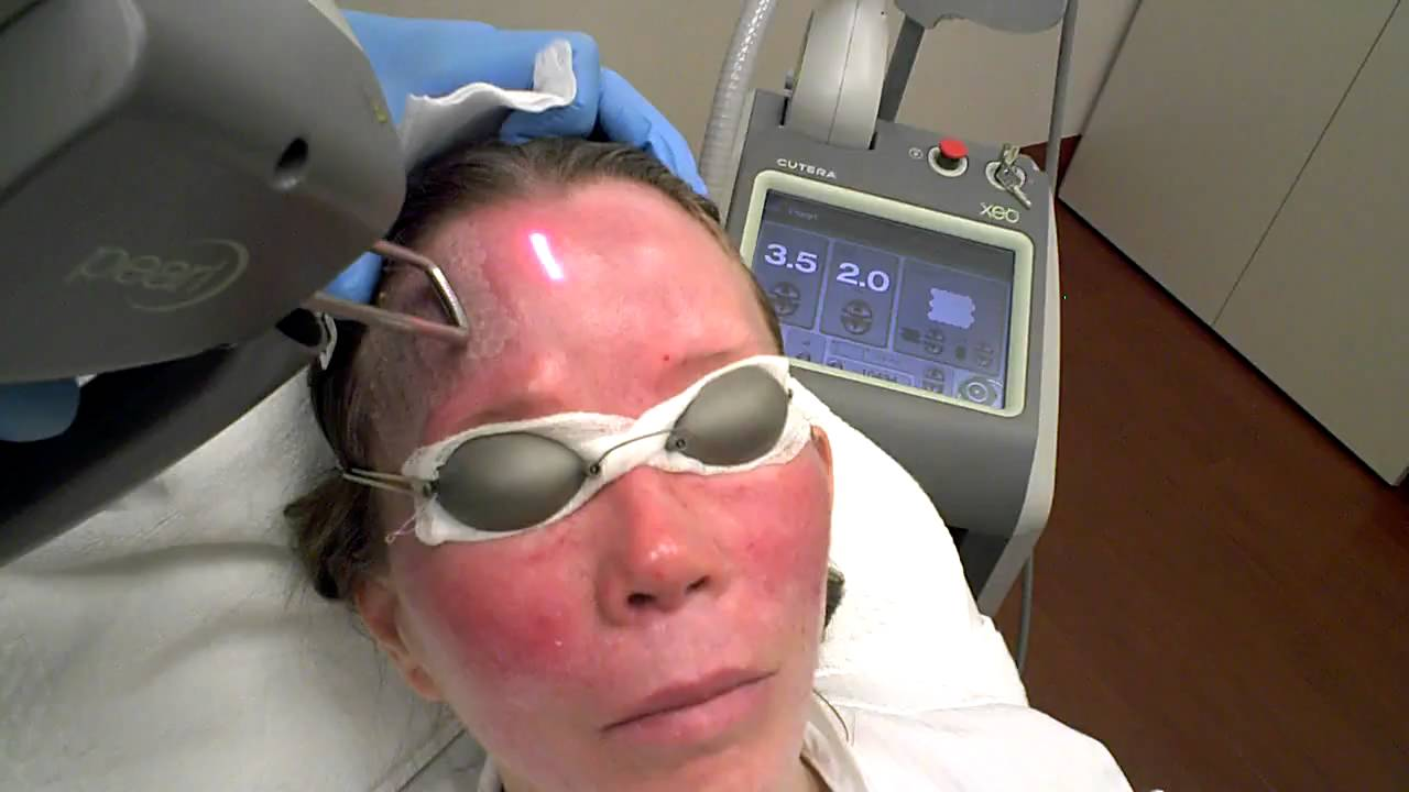 Mini Face Lift With Pearl Laser Youtube
