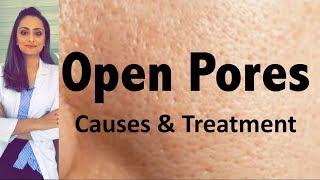 Open Pores:  Causes & Treatment | Dermatologist's opinion | Dr. Aanchal Panth