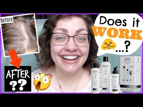 GOING BALD!? | 6 Months Using NIOXIN For Noticeably Thinning Hair
