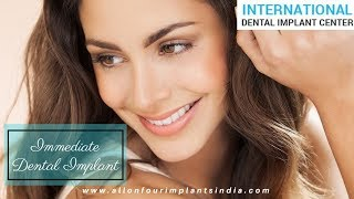Dental Implants | Basal Implants In USA | Immediate Dental Implant | Single Visit Dental Implants