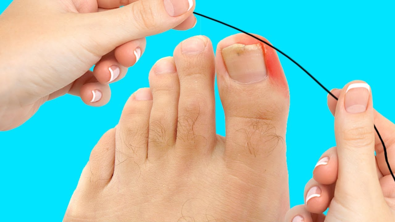24 AWESOME TIPS TO MAKE YOUR FEET LOOK FABULOUS
