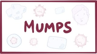Mumps - symptoms, diagnosis, treatment, pathology