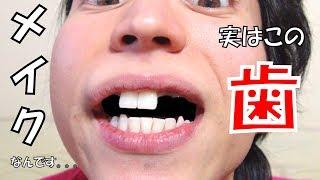 【整形】落ちた歯について語ります... Why I Took My Teeth Out