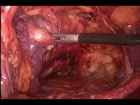 Laparoscopic Inguinal Hernia Surgery(TAPP) For Incarserated Appendices Epiploicae