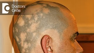 What Is alopecia areata? - Dr. Shuba Dharmana