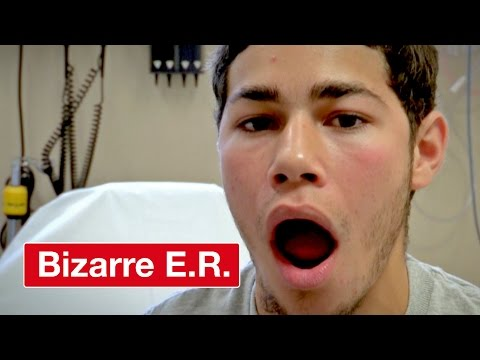 Popping A Dislocated Jaw Into Place - Bizarre ER