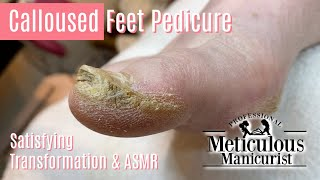 👣How to Pedicure Extremely Calloused Feet and Toes ASMR👣
