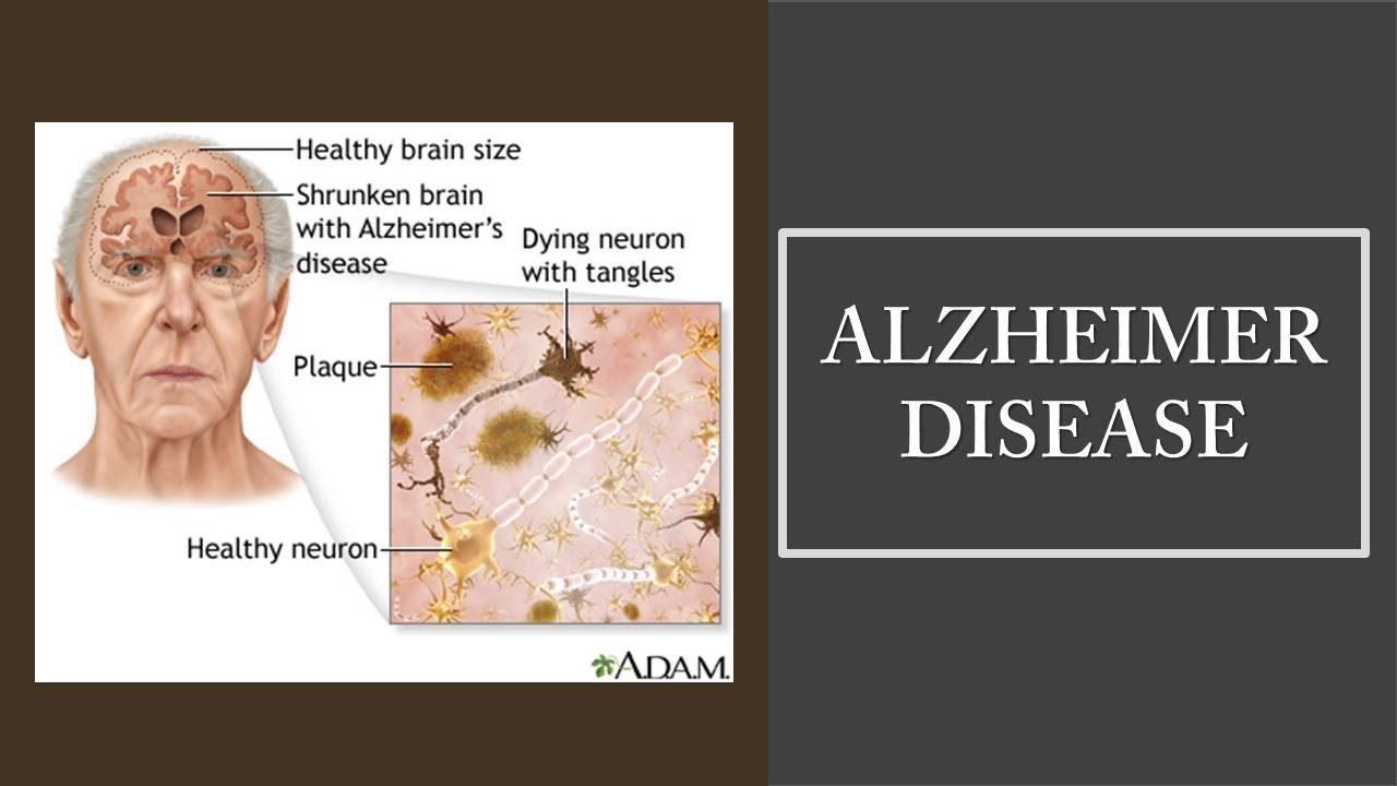 the role of estrogen hormone in the spread of alzheimers disease Estrogen might have a role in alzheimer's prevention after all, scientists say : shots - health news scientists are taking a second look at the idea that hormone replacement therapy could reduce a.