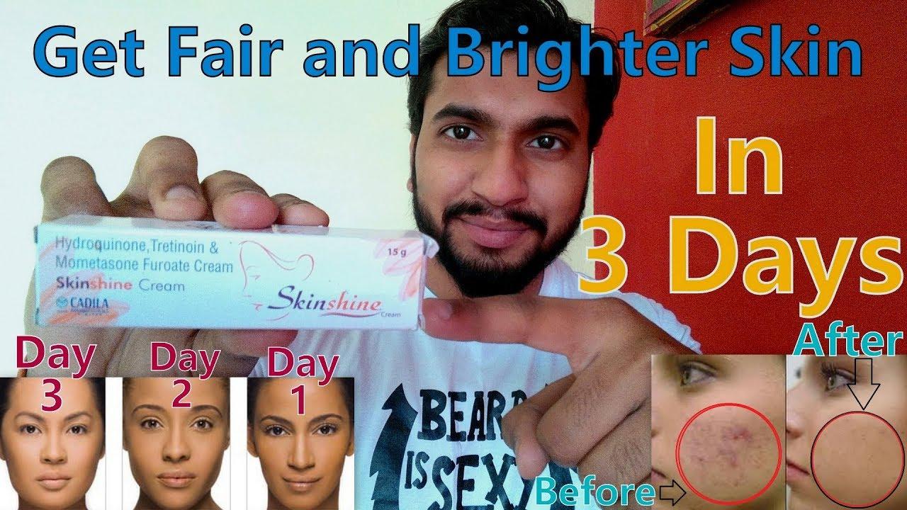 How To Get Fair Skin | Skin Shine Cream Review in Hindi | Remove Dark Spots  | Hydroquinone 2%