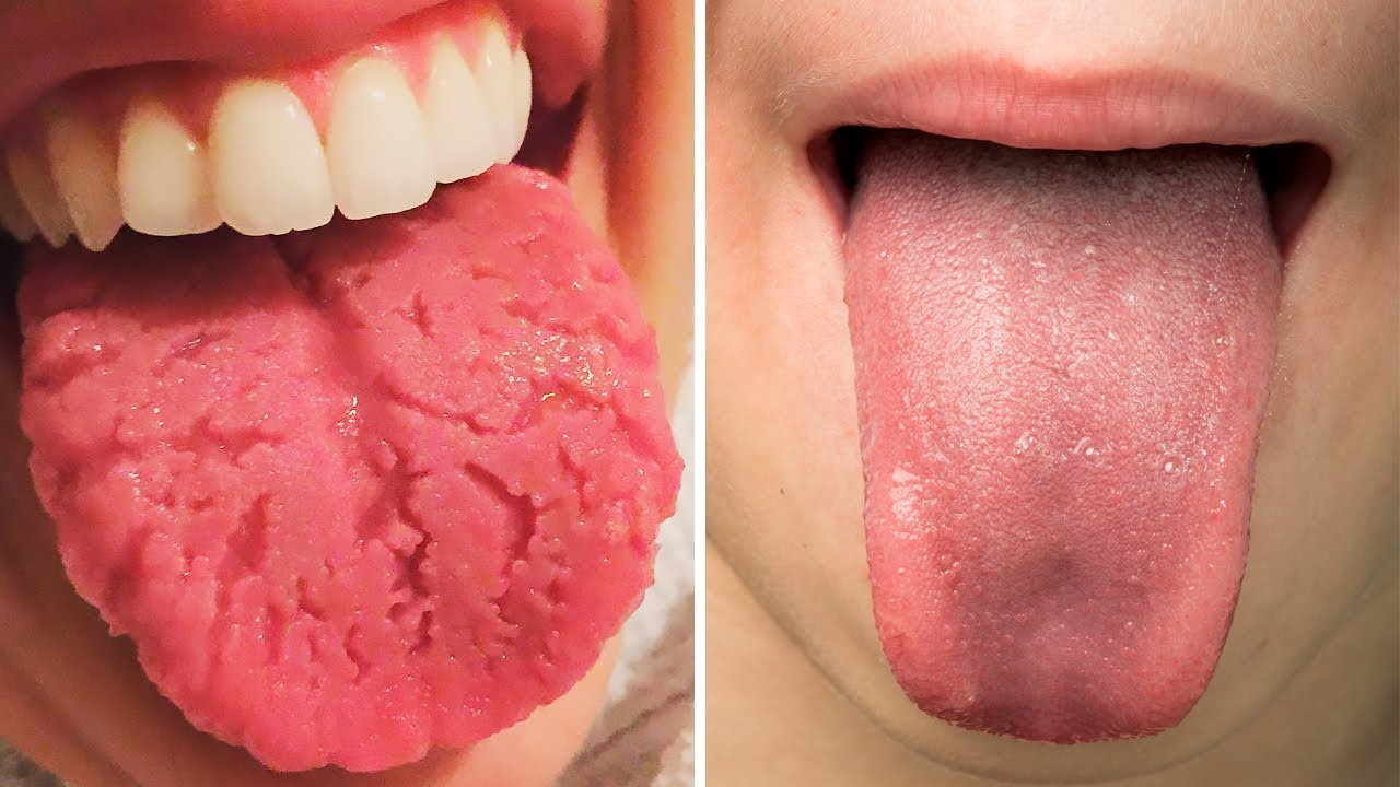 how to achieve a healthy tongue