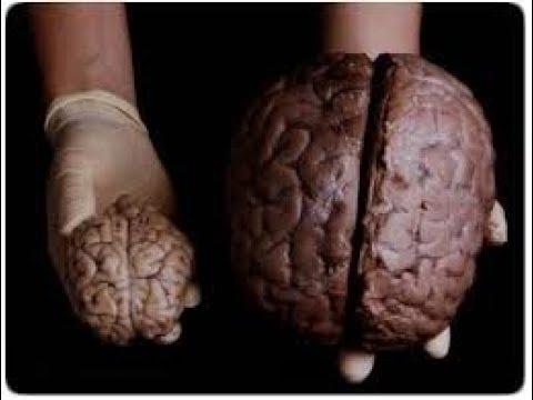Les mystères du cerveau Humain   Documentaire français  HD
