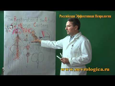 Неврит (воспаление) тройничного нерва