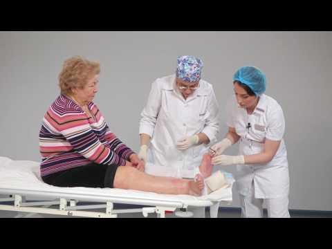 Обработка нейропатической язвы при синдроме диабетической стопы