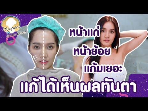 ร้อยไหม ครั้งแรก เห็นผลทันที จริงหรือ? I รีวิวลูกสาวหมอ Sowon Clinic EP.60