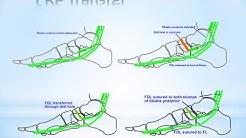 Pes Planus Foot Deformity
