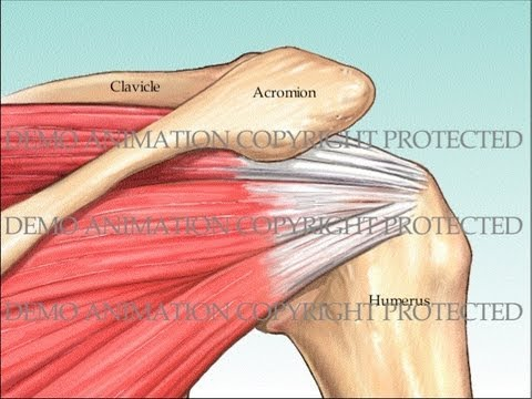 Rotator Cuff Repair and Subacromial Decompression