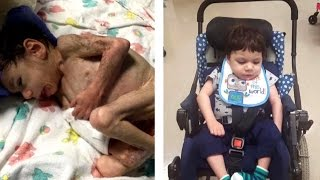 Starving 8-Year-Old Orphan Who Weighed Only 8 Lbs. Now Looks Unrecognizable