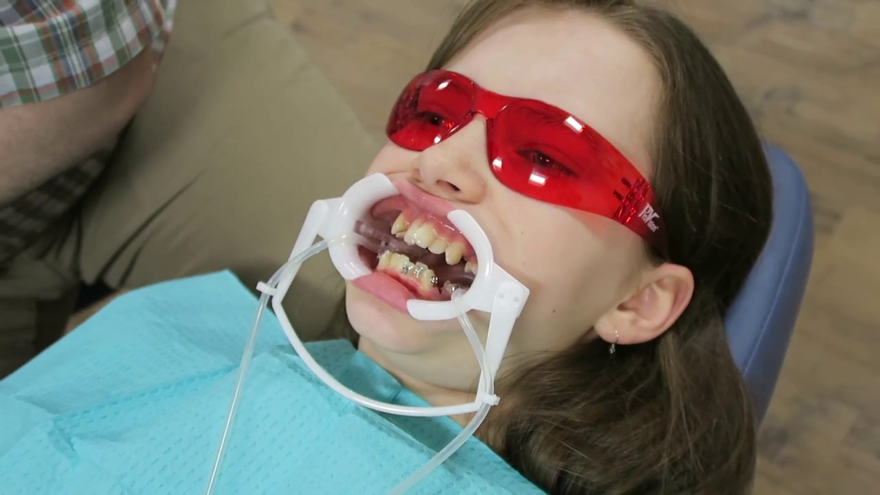 pictures-of-girls-in-braces-opening-ass