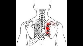 mqdefault - Back Pain Below Right Shoulder Blade