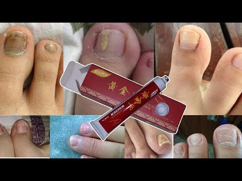 Anti Fungal Nail Infection Good Result Chinese Herbal Toe Nail Treatment