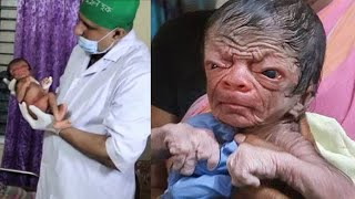 This Baby Was Born With The Face Of An 80-Year-Old Man, And Doctors Were Left Utterly Dumbstruck