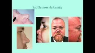 Review vasculitis pdf