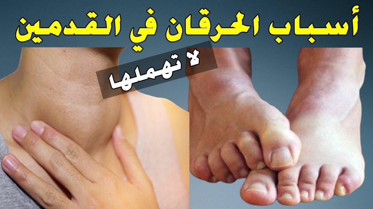 منها كسل الغدة الدرقية.. 5 أسباب غير متوقعة للشعور بالحرقان في القدمين والتنميل في اليدين