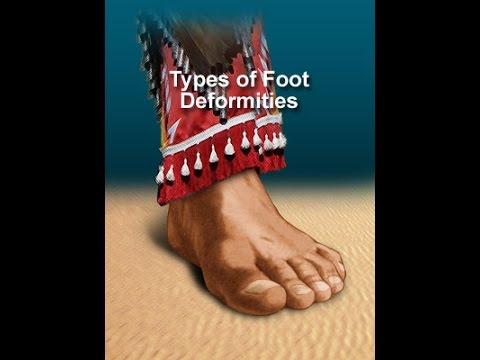 Diabetes Foot Care: Screening - Foot Deformities