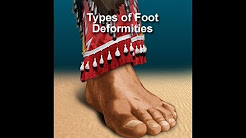 Diabetes Foot Care: Screening - Foot Deformities
