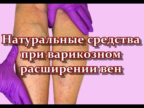 Натуральные средства при варикозном расширении вен | тромбофлебит | заболевание | расширение | варикозное | средства | народные | народная | медицина | здоровье | вылечить