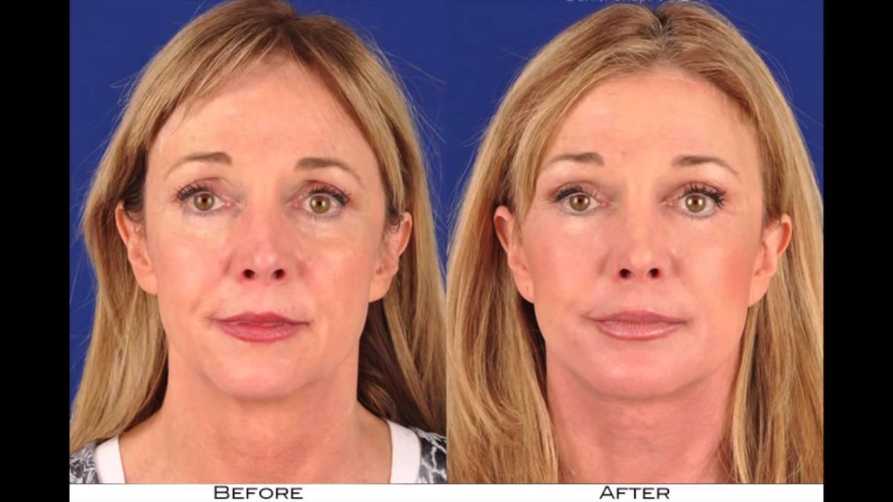 Facial fat transfers