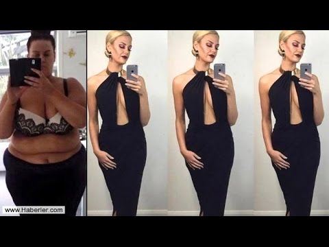 Zayıflamada Dünya Rekoru Sahibi Kadın 155 kg Ağırlıktan 55 Kg Ağırlığa