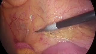 Download Laparoscopic TME with monopolar hook electrocautery
