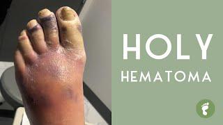 Chronic Subdural Hematoma. Neurosurgical Treatment..